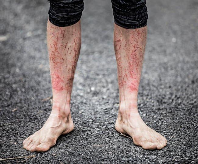 Biegacz i jego rany po Barkley Marathon