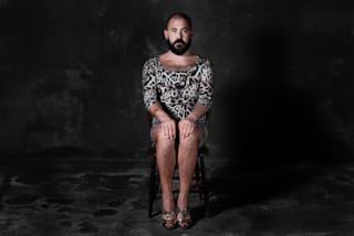 Pete roșii pe picioare: o fotografie, ce să faci și cum să tratezi acasă?